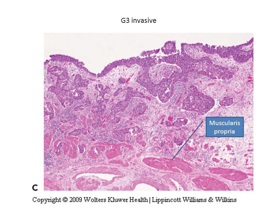 G3 invasive Muscularis propria