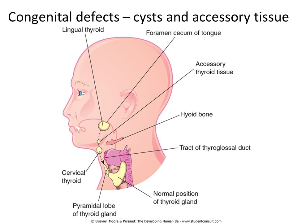 Hyperthyroid Hyperthyroidism – excess production of thyroid hormone Thyrotoxicosis – response to elevated thyroid hormone Graves disease – Activating antibodies to TSH receptors – Also affects other tissues Toxic multinodular goitre Exogenous thyroxin Adenoma