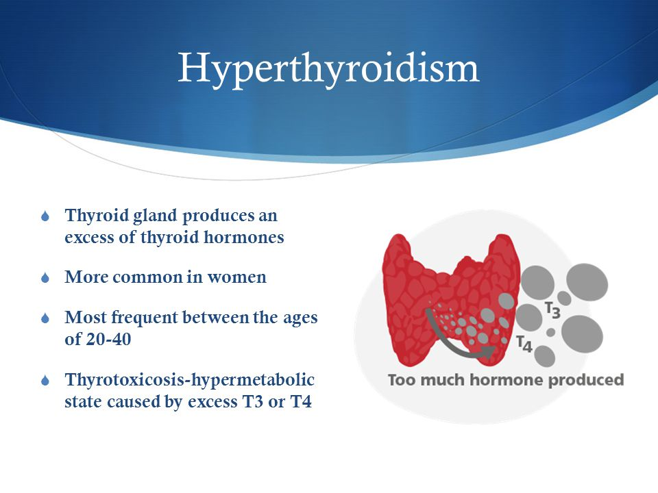 Hyperthyroidism  Thyroid gland produces an excess of thyroid hormones  More common in women  Most frequent between the ages of 20-40  Thyrotoxicosis-hypermetabolic state caused by excess T3 or T4