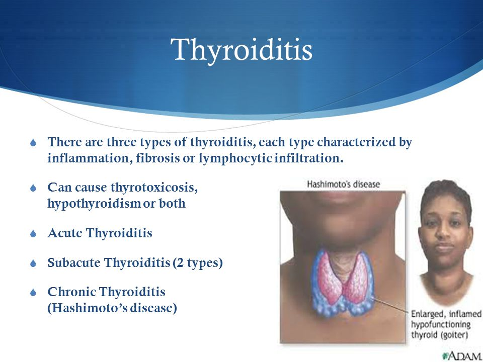 Thyroiditis  There are three types of thyroiditis, each type characterized by inflammation, fibrosis or lymphocytic infiltration.