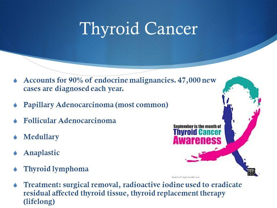 Thyroid Cancer  Accounts for 90% of endocrine malignancies.