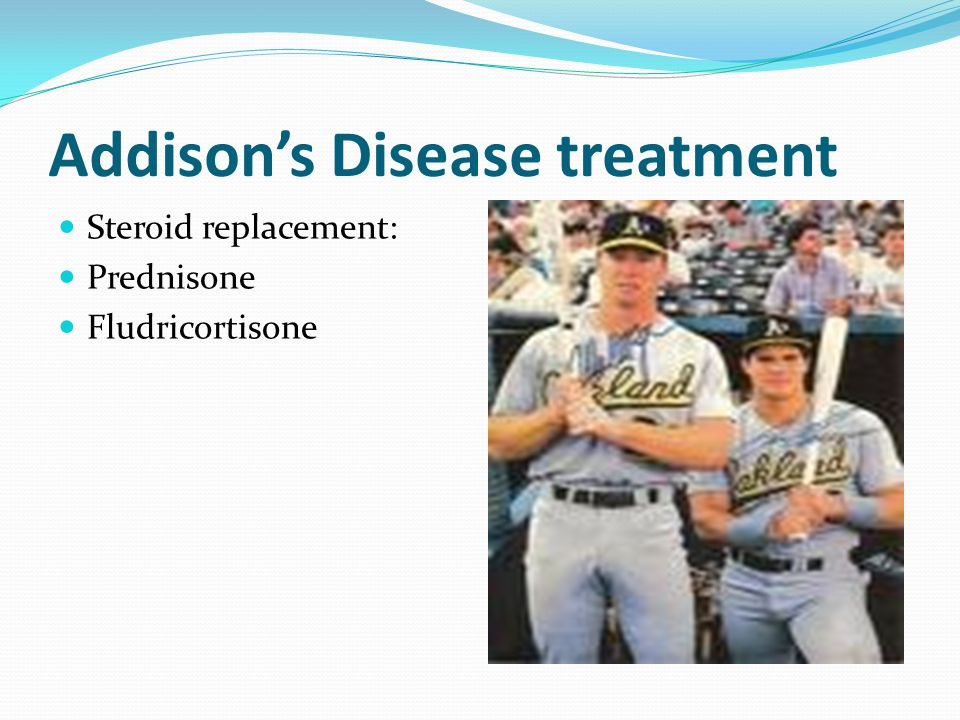 Addison's Disease treatment Steroid replacement: Prednisone Fludricortisone