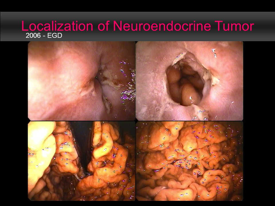 Localization of Neuroendocrine Tumor 2006 - EGD