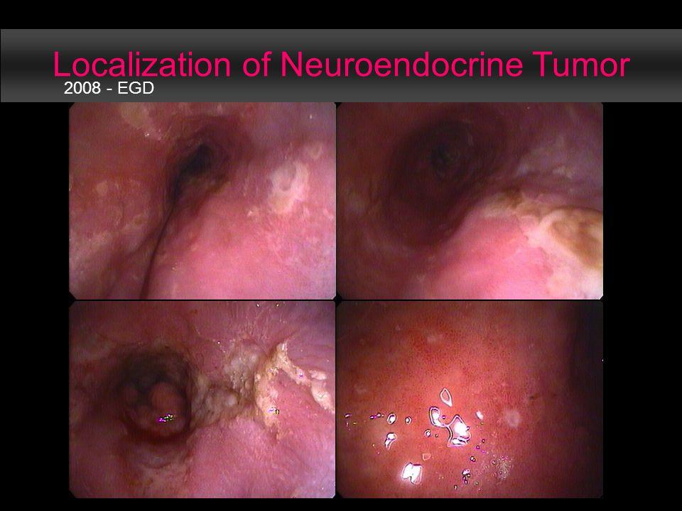 Localization of Neuroendocrine Tumor 2008 - EGD