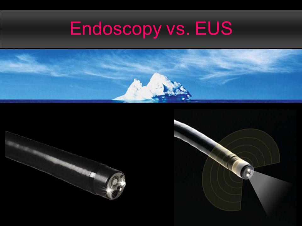 Endoscopy vs. EUS