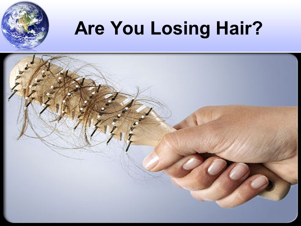 © 2011 Revelation Health LLC Are You Losing Hair?