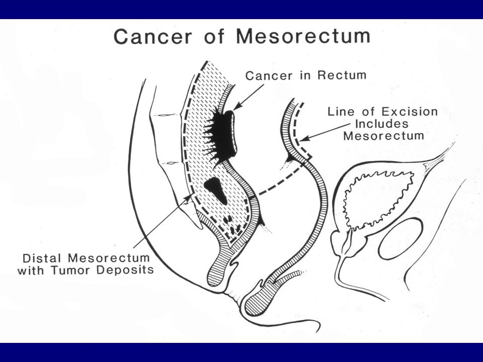 Downstaging8% Sphincter Preservation39%19%* Local Recurrence6%13%* Survival76%74% German rectal cancer study Sauer, NEJM 2005 Pre-OpPost-Op * p<0.05
