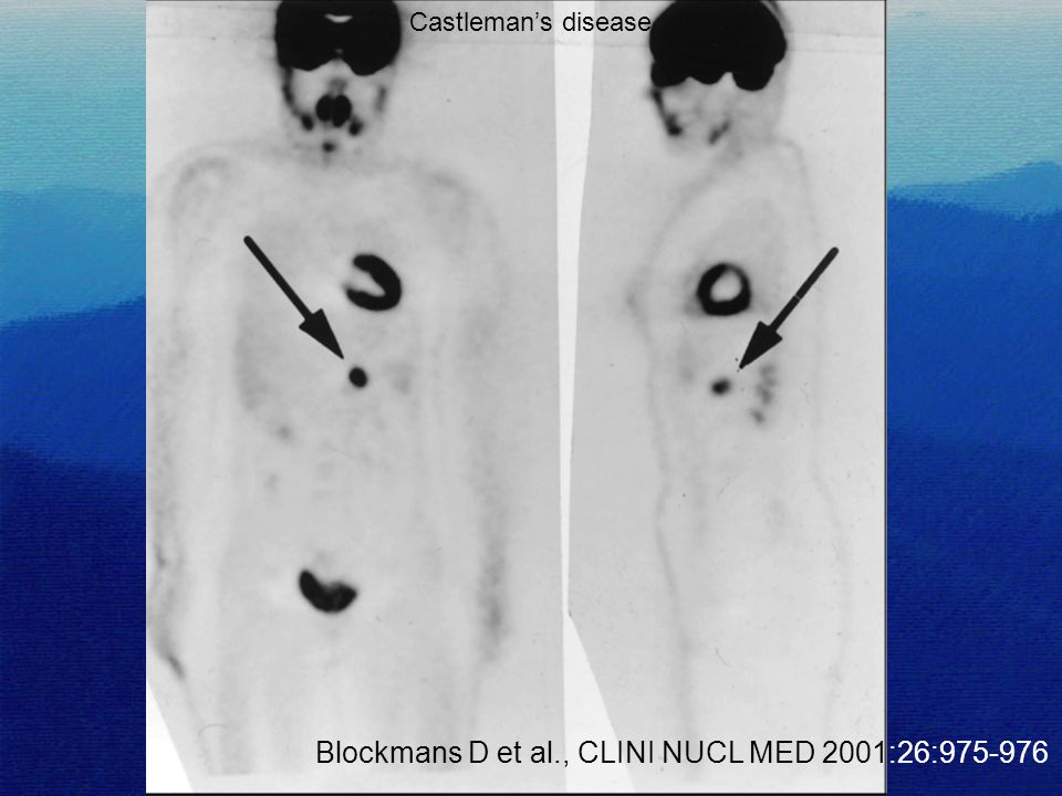 Blockmans D et al., CLINI NUCL MED 2001:26:975-976 Castleman's disease