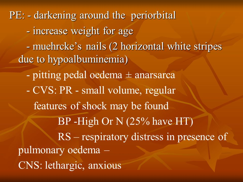 PE: - darkening around the periorbital - increase weight for age - increase weight for age - muehrcke's nails (2 horizontal white stripes due to hypoalbuminemia) - muehrcke's nails (2 horizontal white stripes due to hypoalbuminemia) - pitting pedal oedema ± anarsarca - CVS: PR - small volume, regular features of shock may be found BP -High Or N (25% have HT) RS – respiratory distress in presence of pulmonary oedema – CNS: lethargic, anxious