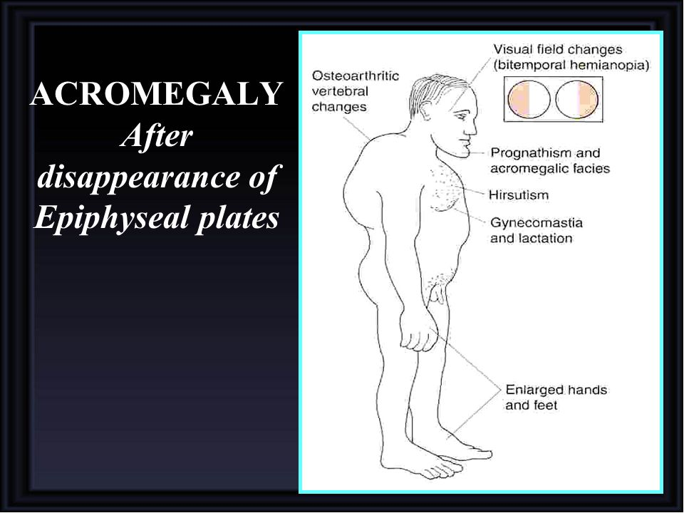 ACROMEGALY After disappearance of Epiphyseal plates