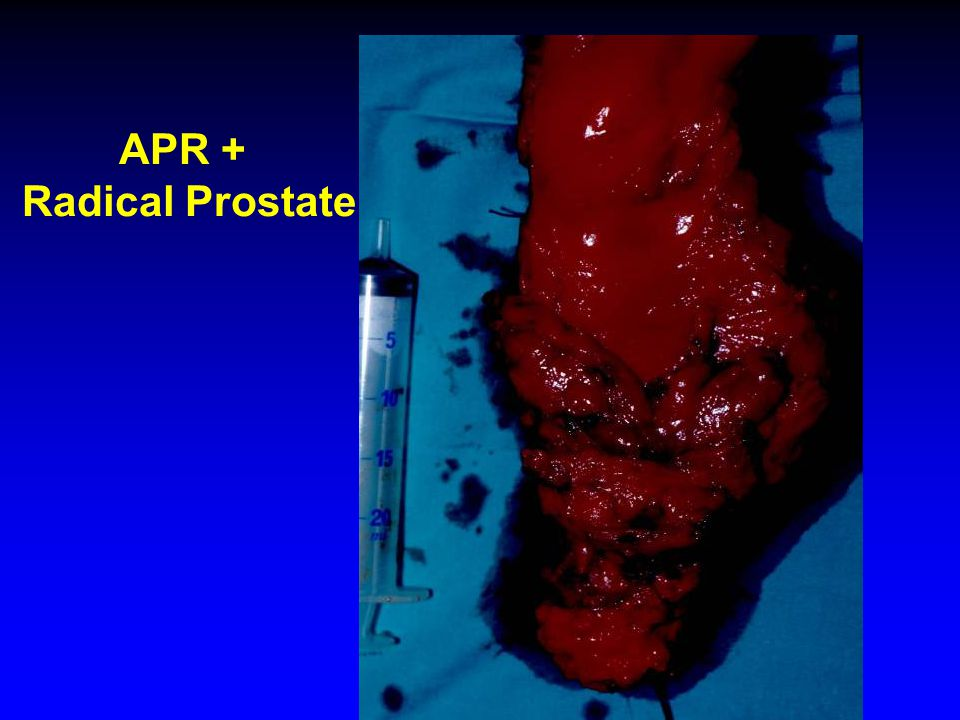 APR + Radical Prostate