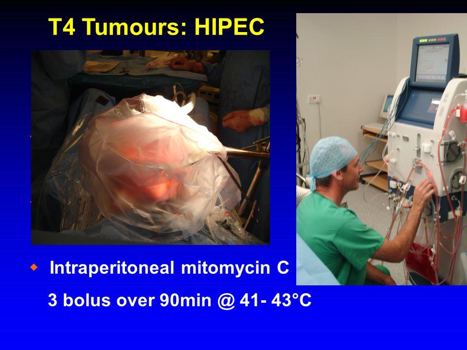 T4 Tumours: HIPEC  Peritoneal involvement  Complete excision  Intraperitoneal mitomycin C 3 bolus over 90min @ 41- 43°C