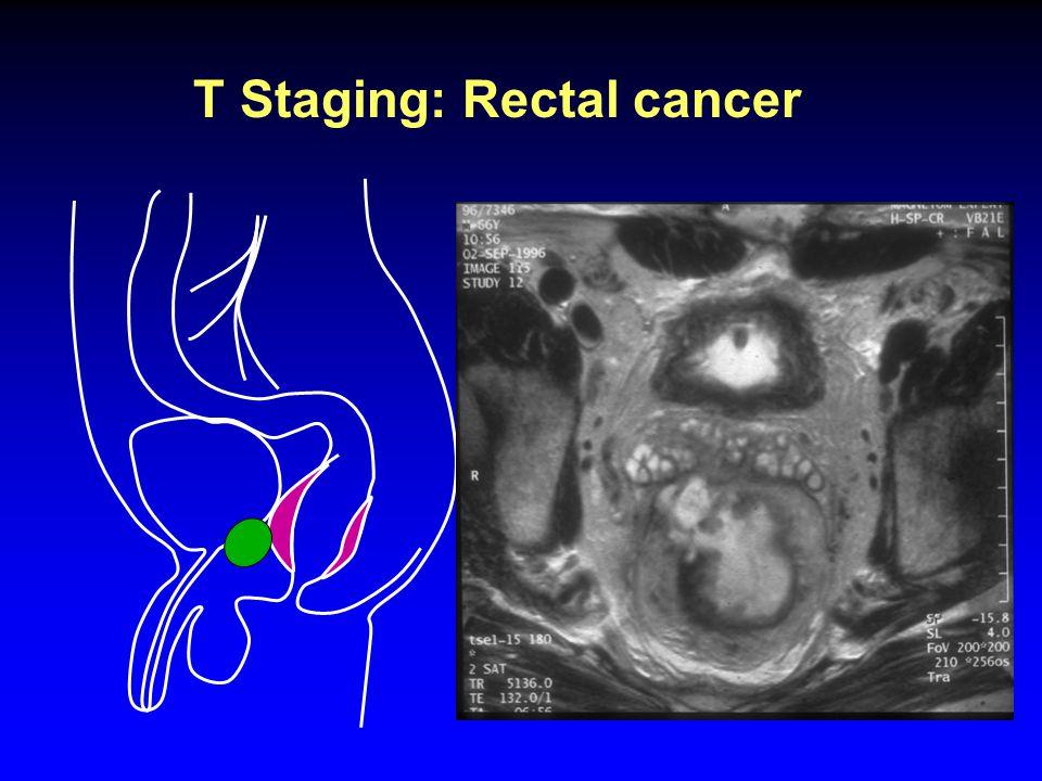 T Staging: Rectal cancer T4 Male Invading adjacent organs