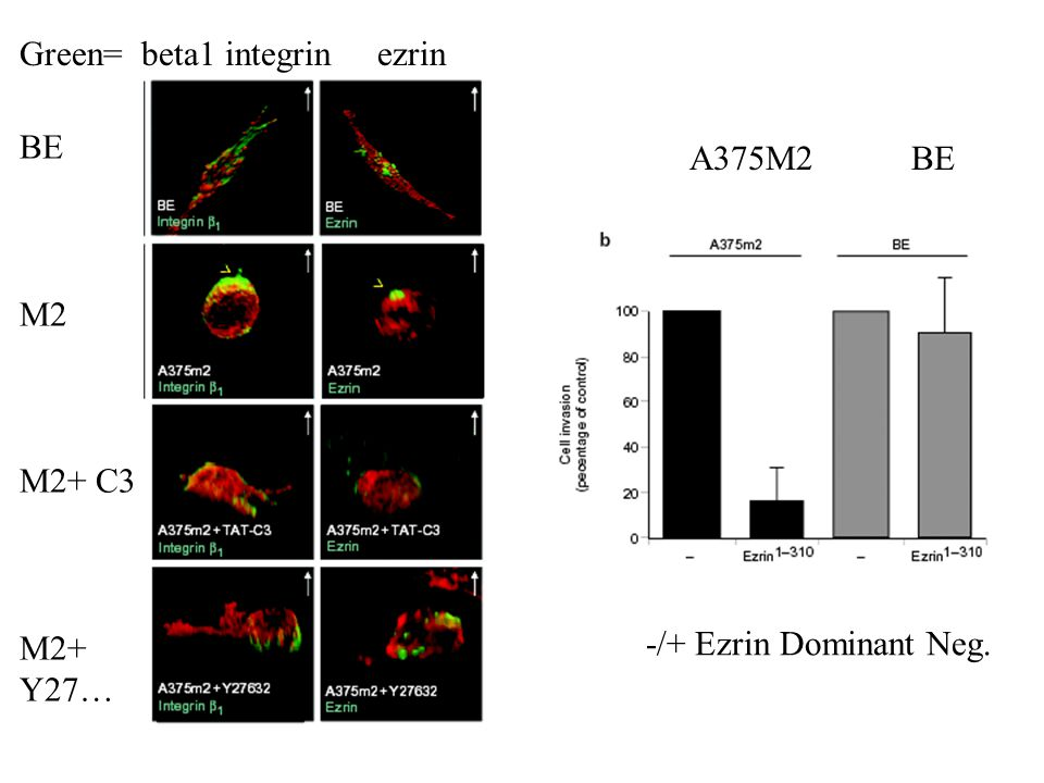 Green= beta1 integrin ezrin BE M2 M2+ C3 M2+ Y27… A375M2 BE -/+ Ezrin Dominant Neg.