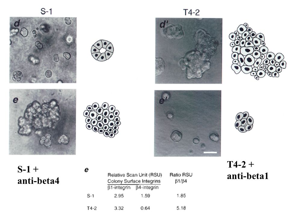 Physiological relevance of blocking beta1 function: Cells in suspension, treated with anti-B1 antibody, injected SQ: Reduced tumor number and size