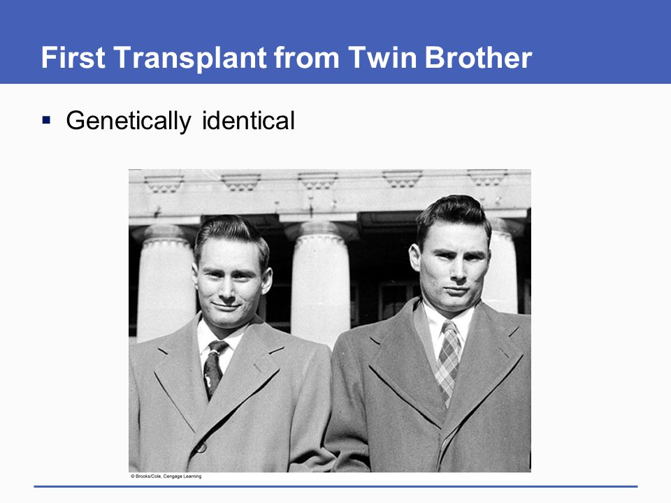 First Transplant from Twin Brother  Genetically identical