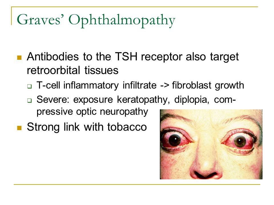 Graves' Ophthalmopathy Antibodies to the TSH receptor also target retroorbital tissues  T-cell inflammatory infiltrate -> fibroblast growth  Severe: exposure keratopathy, diplopia, com- pressive optic neuropathy Strong link with tobacco