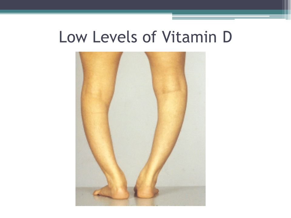 Low Levels of Vitamin D