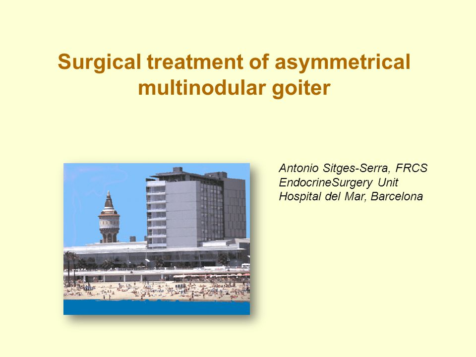 Surgical treatment of asymmetrical multinodular goiter Antonio Sitges-Serra, FRCS EndocrineSurgery Unit Hospital del Mar, Barcelona