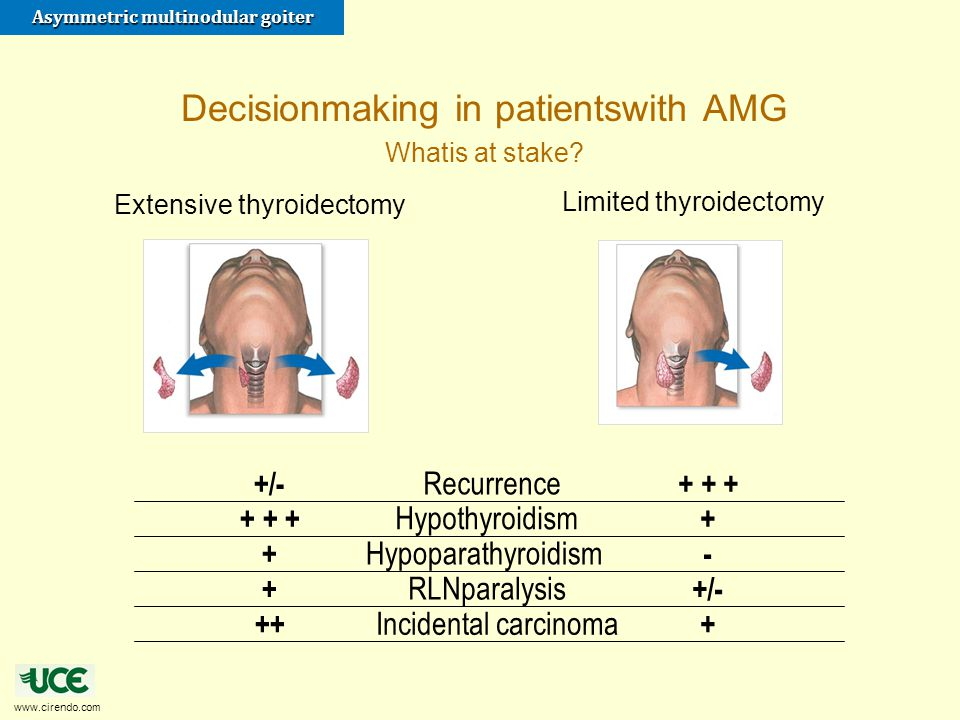 www.cirendo.com Asymmetric multinodular goiter Limited thyroidectomy Extensive thyroidectomy + + ++/- Recurrence ++ + + Hypothyroidism -+ Hypoparathyr