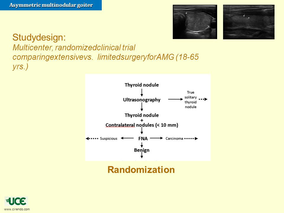 www.cirendo.com Asymmetric multinodular goiter Randomization Studydesign: Multicenter, randomizedclinical trial comparingextensivevs. limitedsurgeryfo