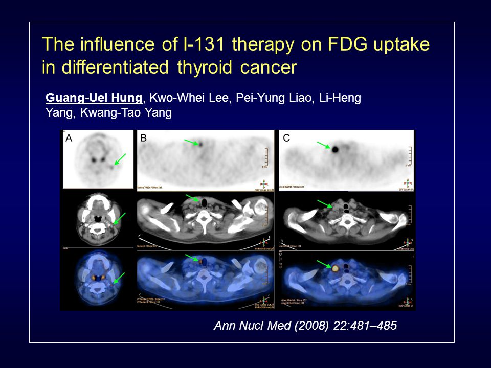 The influence of I-131 therapy on FDG uptake in differentiated thyroid cancer Guang-Uei Hung, Kwo-Whei Lee, Pei-Yung Liao, Li-Heng Yang, Kwang-Tao Yang Ann Nucl Med (2008) 22:481–485