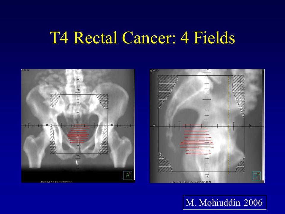 CALGB 89901: Results pCR (%) Acute G3/4 Diarrhea (%) Late G 3/4 GI Toxicity (%) EBRT / 5-FU + Oxaliplatin (Phase II– 32 Pts) 25 37 No Comment