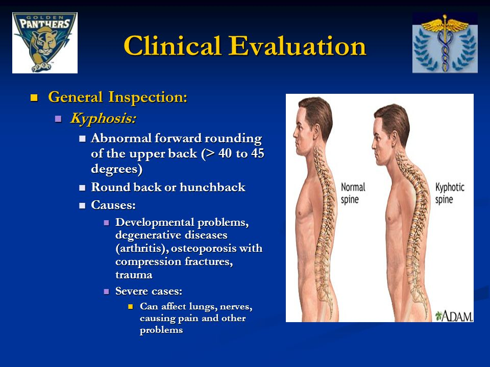 General Inspection: General Inspection: Kyphosis: Kyphosis: Abnormal forward rounding of the upper back (> 40 to 45 degrees) Abnormal forward rounding