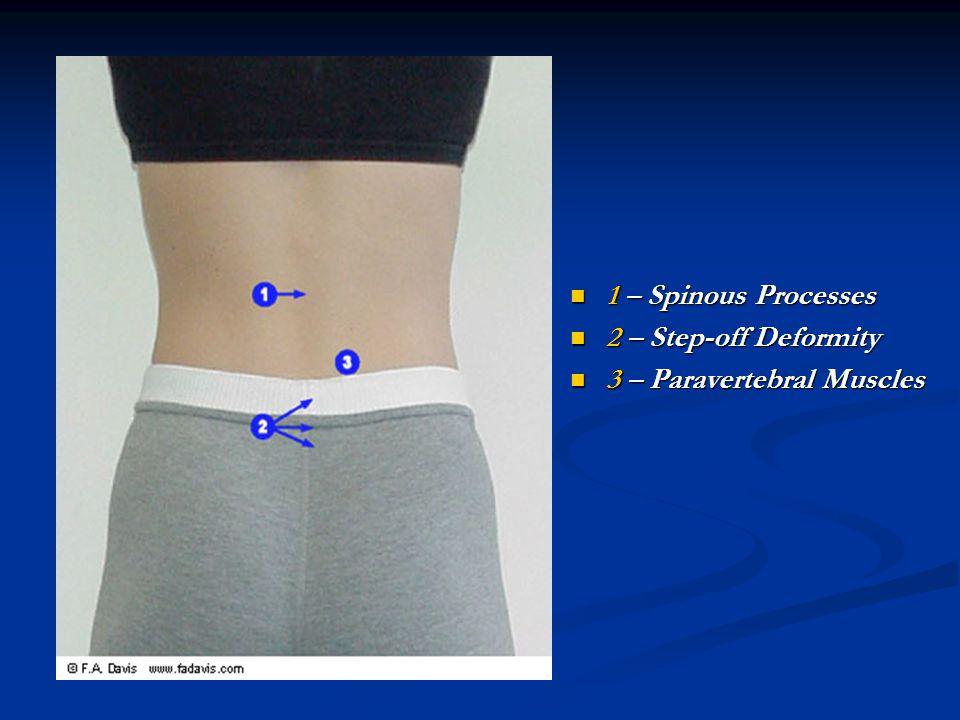 1 – Spinous Processes 2 – Step-off Deformity 3 – Paravertebral Muscles