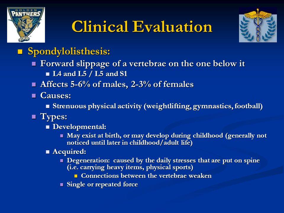 Clinical Evaluation Spondylolisthesis: Spondylolisthesis: Forward slippage of a vertebrae on the one below it Forward slippage of a vertebrae on the o