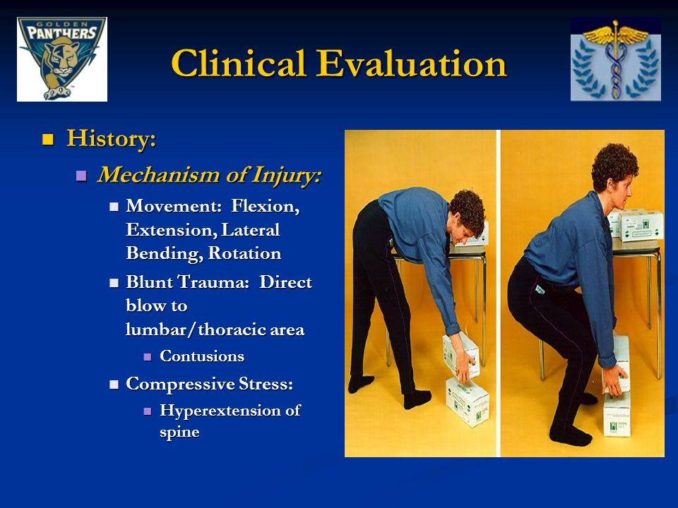 History: History: Mechanism of Injury: Mechanism of Injury: Movement: Flexion, Extension, Lateral Bending, Rotation Movement: Flexion, Extension, Late