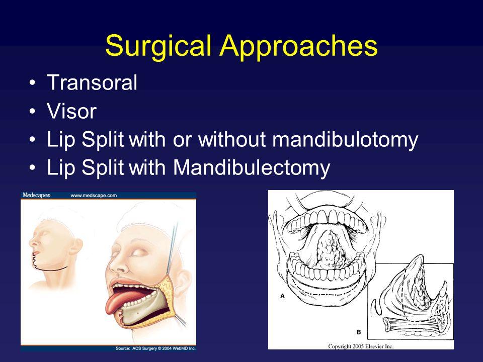 Surgical Approaches Transoral Visor Lip Split with or without mandibulotomy Lip Split with Mandibulectomy