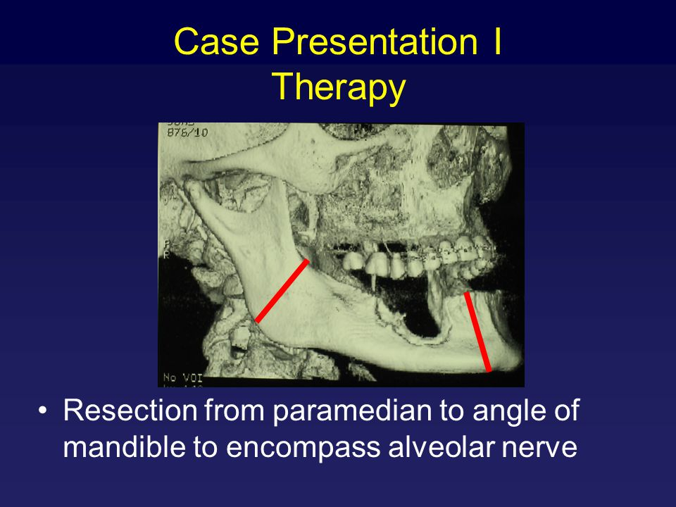 Case Presentation I Therapy Resection from paramedian to angle of mandible to encompass alveolar nerve