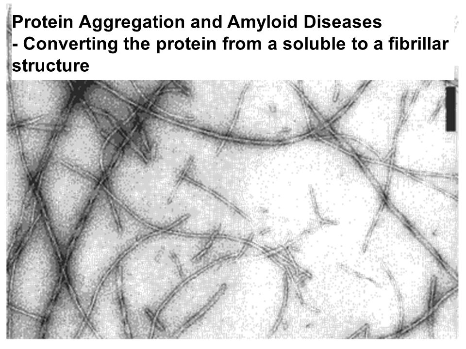 Protein Aggregation and Amyloid Diseases - Converting the protein from a soluble to a fibrillar structure