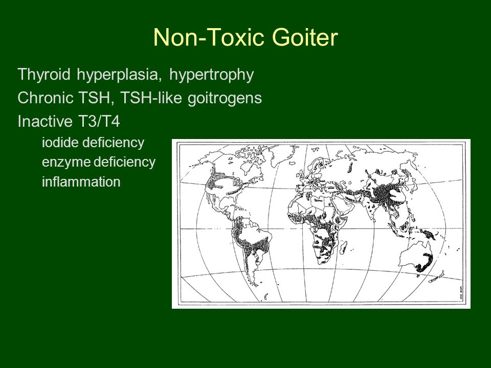 Non-Toxic Goiter Thyroid hyperplasia, hypertrophy Chronic TSH, TSH-like goitrogens Inactive T3/T4 iodide deficiency enzyme deficiency inflammation