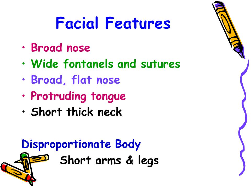 Facial Features Broad nose Wide fontanels and sutures Broad, flat nose Protruding tongue Short thick neck Disproportionate Body Short arms & legs