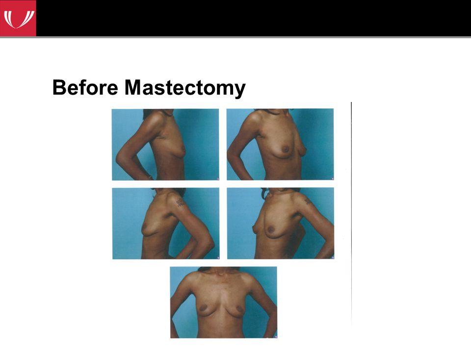 Before Mastectomy