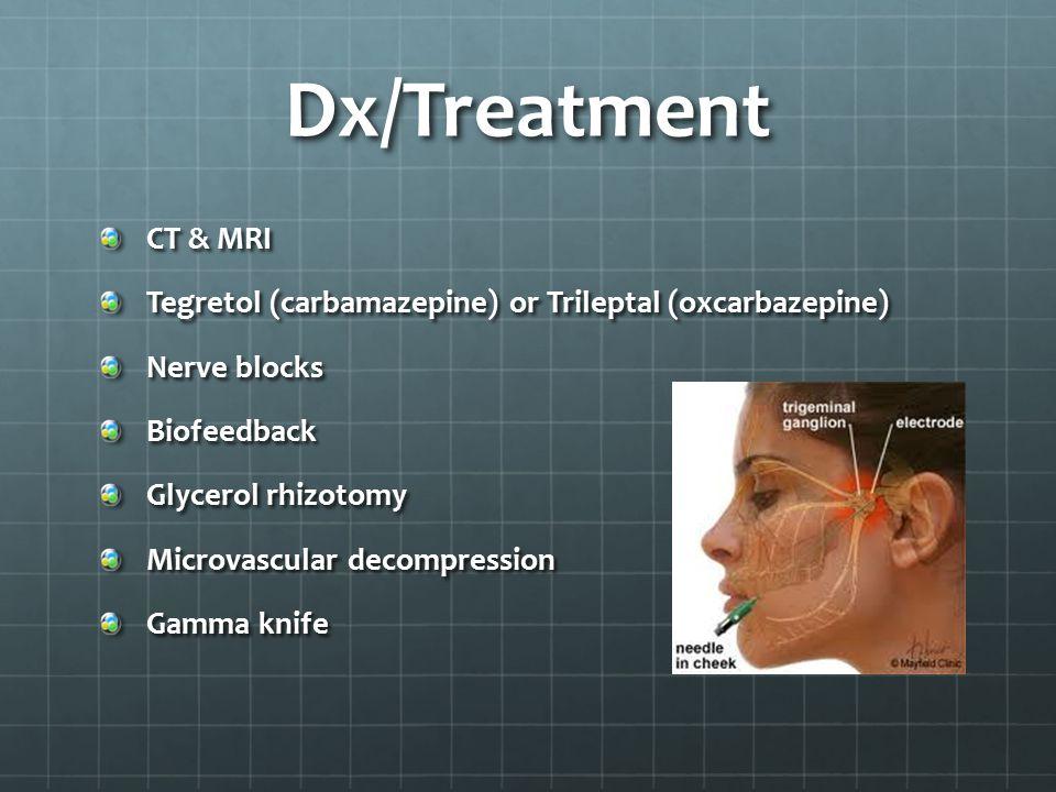 Dx/Treatment CT & MRI Tegretol (carbamazepine) or Trileptal (oxcarbazepine) Nerve blocks Biofeedback Glycerol rhizotomy Microvascular decompression Gamma knife