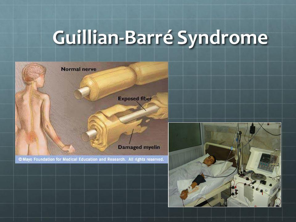 Guillian-Barré Syndrome