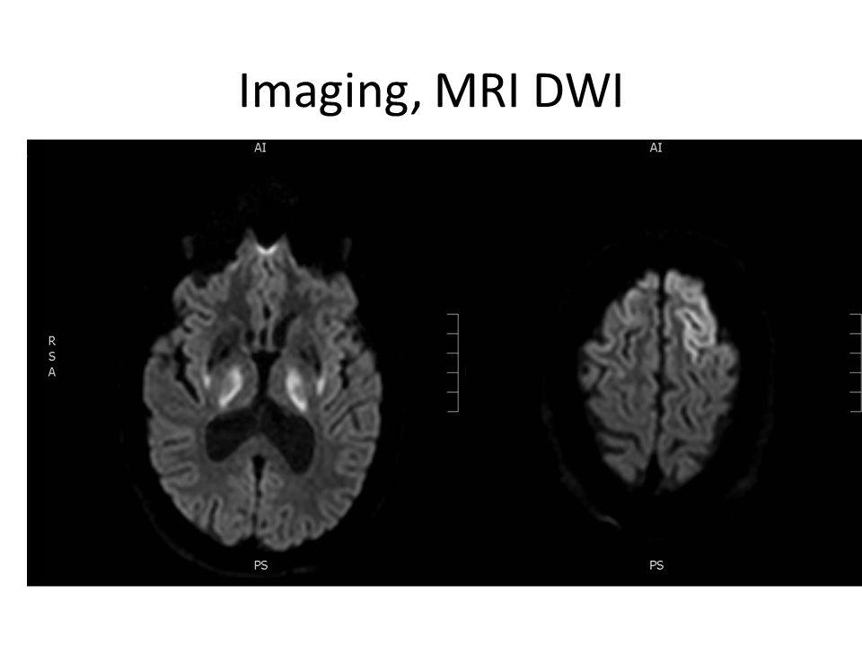 Imaging, MRI DWI