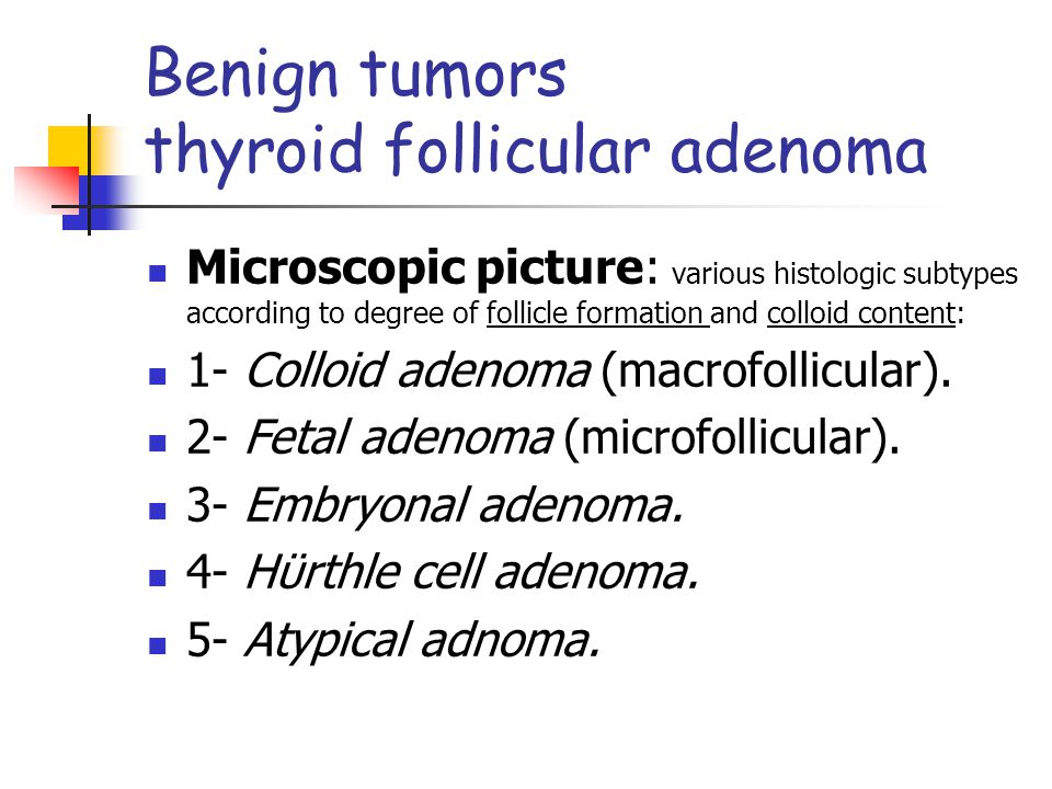 Microscopic picture: various histologic subtypes according to degree of follicle formation and colloid content: 1- Colloid adenoma (macrofollicular).