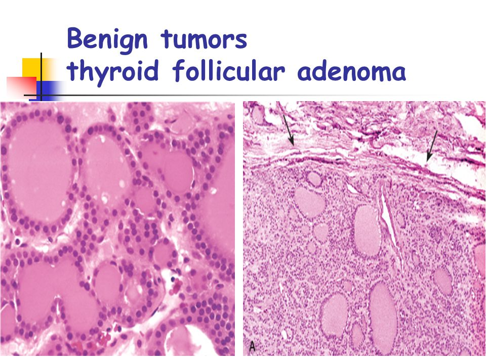 Benign tumors thyroid follicular adenoma