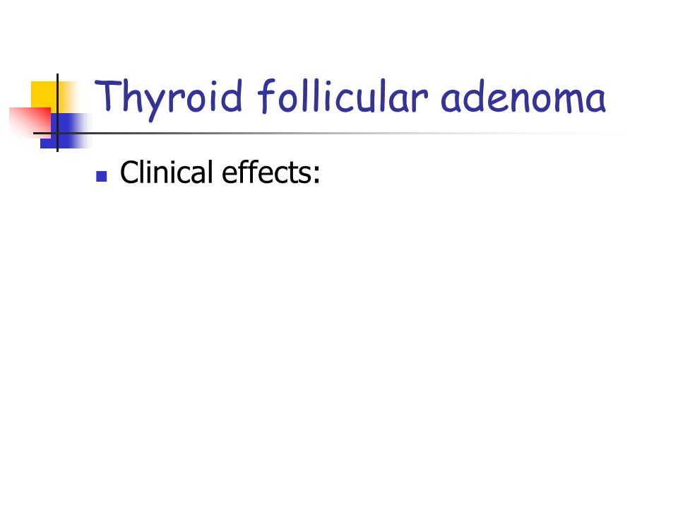 Thyroid follicular adenoma Clinical effects: