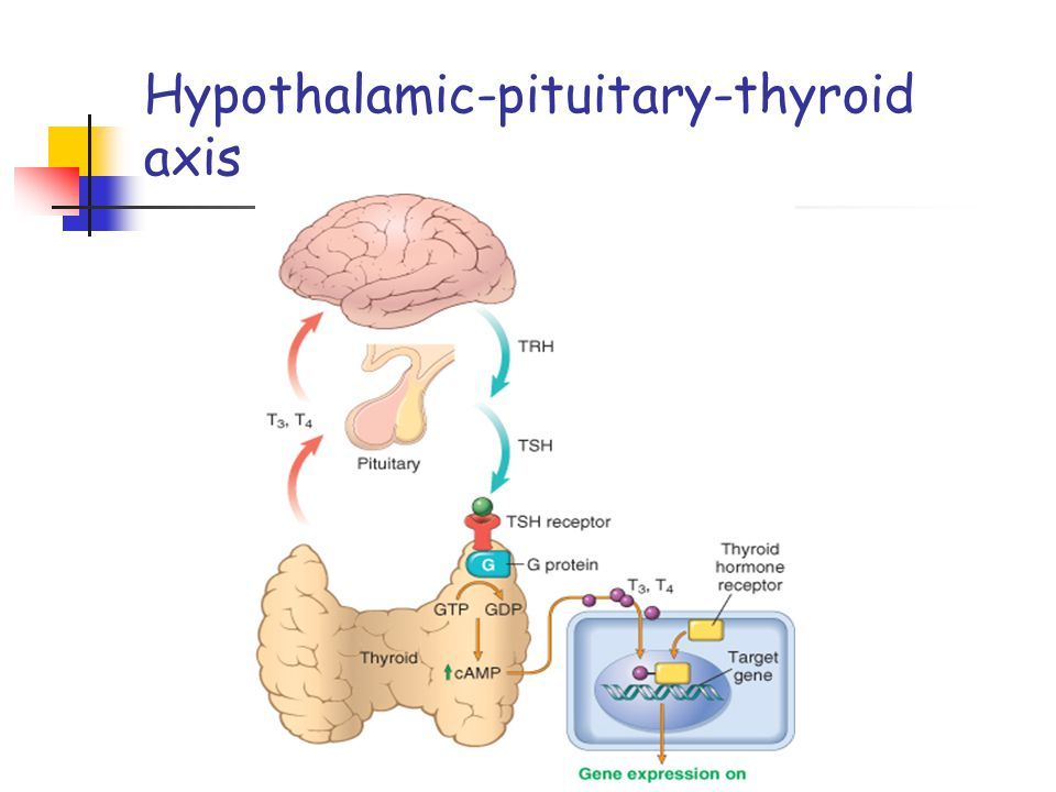 Graves disease Pathogenesis It results from autoantibodies to TSH receptor, (long acting thyroid stimulator (LATS)) activate the surface receptors for TSH on thyroid epithelium.