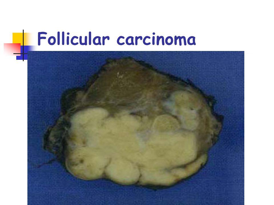 Follicular carcinoma