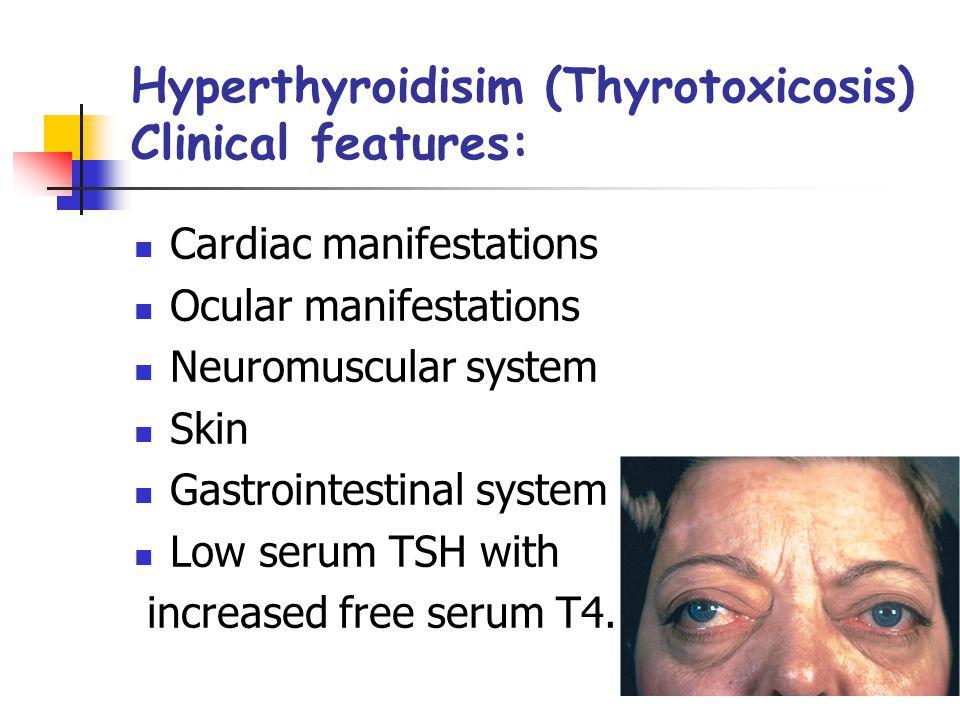 Thyroiditis Types: Hashimoto thyroiditis Subacute (granulomatous) thyroiditis Reidel thyroiditis