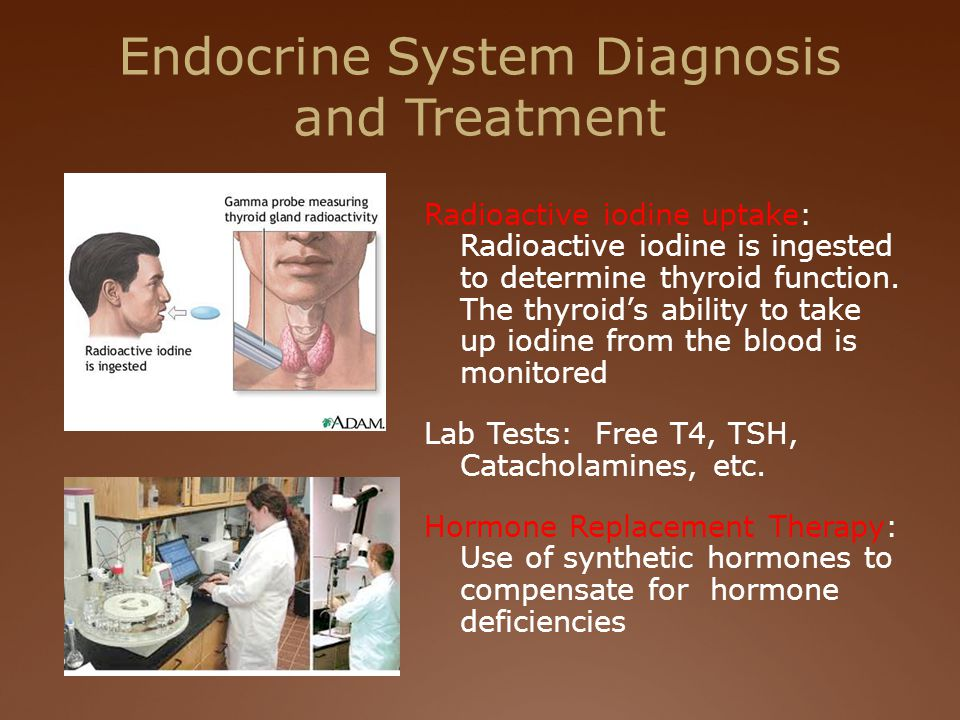Endocrine System Diagnosis and Treatment Radioactive iodine uptake: Radioactive iodine is ingested to determine thyroid function.
