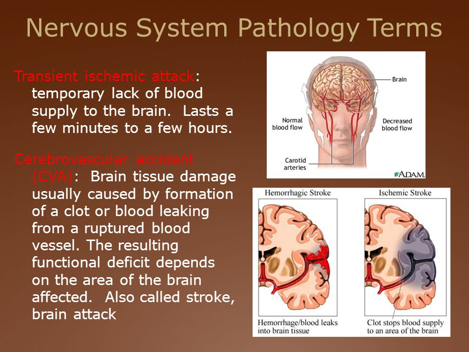 Nervous System Pathology Terms Transient ischemic attack: temporary lack of blood supply to the brain.