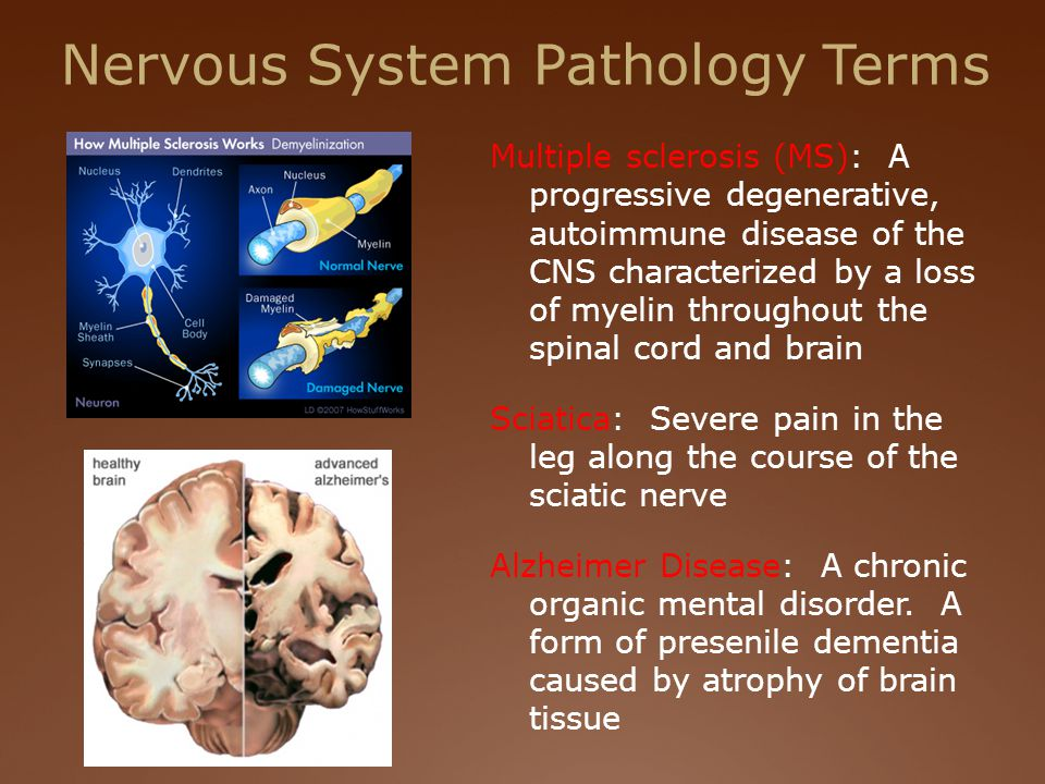 Nervous System Pathology Terms Multiple sclerosis (MS): A progressive degenerative, autoimmune disease of the CNS characterized by a loss of myelin throughout the spinal cord and brain Sciatica: Severe pain in the leg along the course of the sciatic nerve Alzheimer Disease: A chronic organic mental disorder.