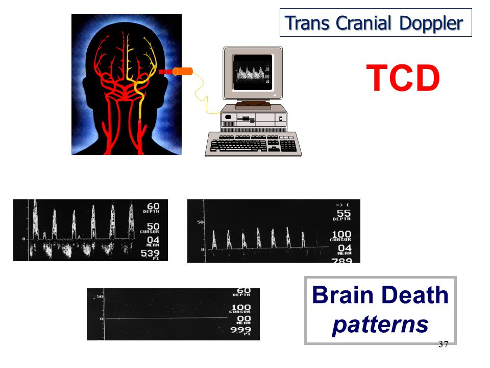 TCD Brain Death patterns Trans Cranial Doppler 37